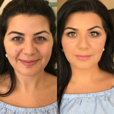 before and after beauty